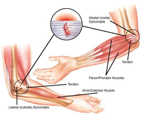 bursitis in many joints picture 11