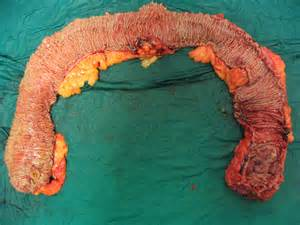 does diarrhea mean colon cancer picture 13
