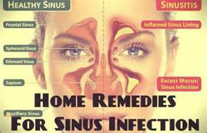 chronic sinusitis and fungus and natural treatment picture 11