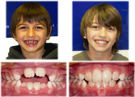 do your teeth change position picture 9