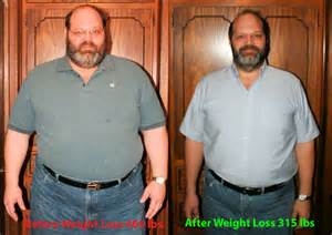 surgi-lite weight loss surgery picture 18