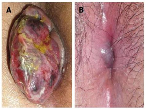 strangulated hemorrhoids pictures picture 2