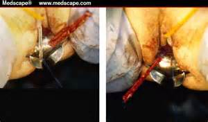 bladder surgery sling procedure picture 6