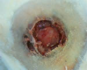 holes develop in skin around ania picture 13
