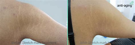 stretch marks treatment picture 9