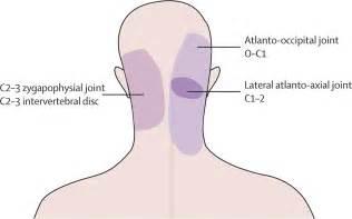 pain joint pain head ache picture 2
