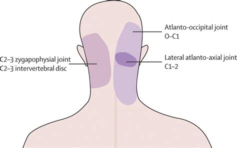 neck pain relief picture 5