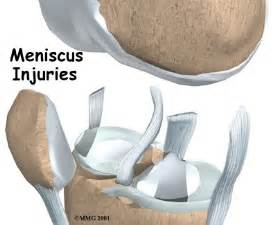meniscus muscle picture 3