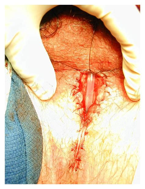 alternative cure for urethral stricture picture 5