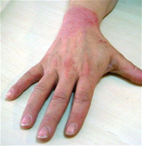 how to remove thicken hand skin from exema picture 6
