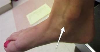 penis sprain picture 2
