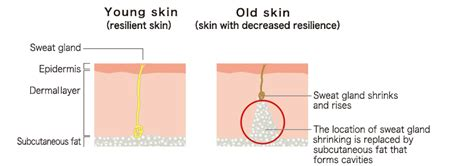 sagging skin research for minority picture 2