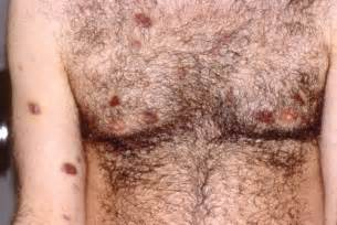 military service conected skin lesions picture 11