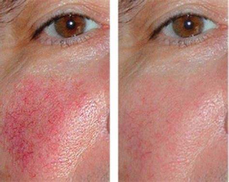 couperose skin problem picture 7