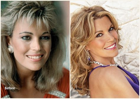 did rachel frederickson have skin surgery picture 9