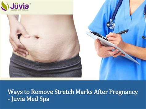 ways to remove stretch marks picture 10