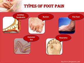 foot pain relief picture 11