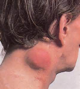 pictures of different types of skin cancer picture 7