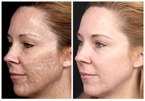 anti aging solution to melasma skin picture 11