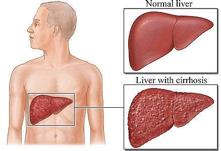 cirrosis of the liver picture 3