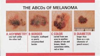 irregular skin lesions of the breasts picture 3