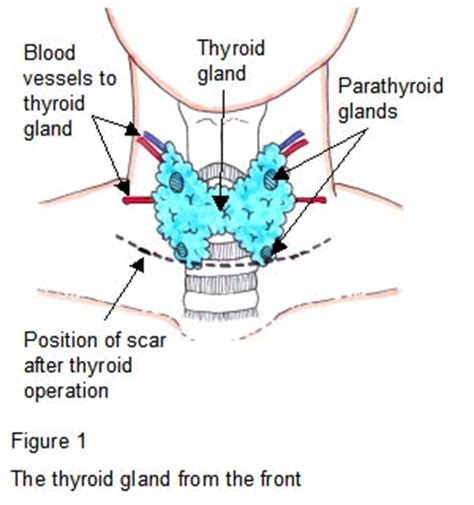 cough up blood aftter thyroid surgery picture 1