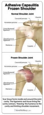 stiff shoulder joint picture 3
