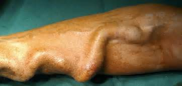 Intestinal thrombus picture 2