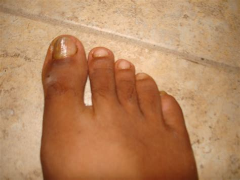 alternative cure for toenail fungus picture 1