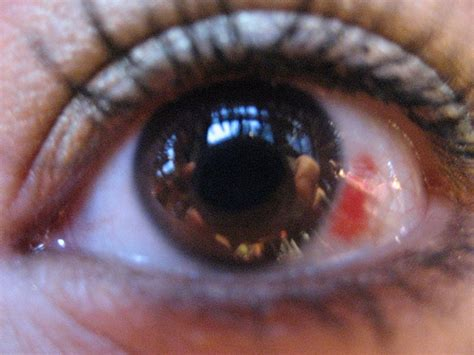 herpes of eye picture 5