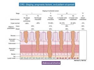 colon cancer symptoms picture 5