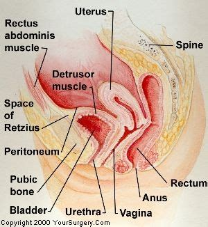 abnormalities between vagina and bladder picture 1