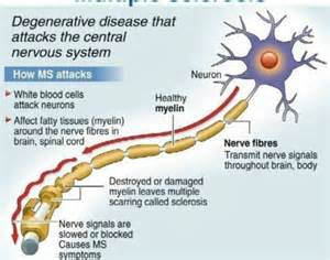 multiple sclerosis and gastrointestinal disorder picture 3