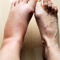 liver failure + swollen ankles picture 6