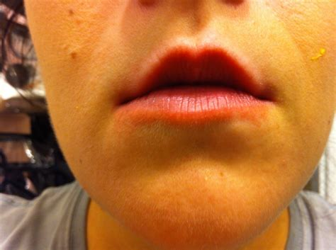 burning lips picture 1