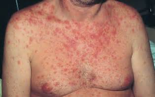 hiv skin conditions picture 15