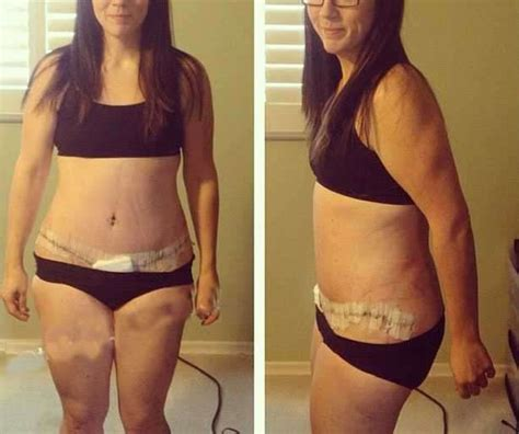 apple cider vinegar for weight loss picture 6