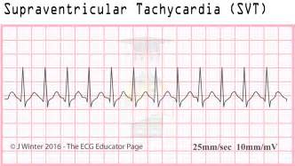 tachycardia with h whitener picture 3