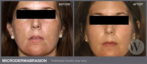 acne scarring picture 11