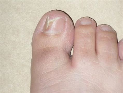 acrylic nail fungus symptoms picture 10