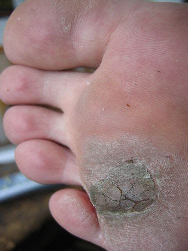 warts on feet picture 11