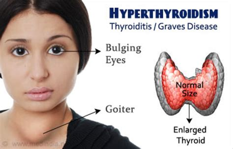 causes of a overactive thyroid picture 10
