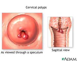 polyps after menopause picture 7