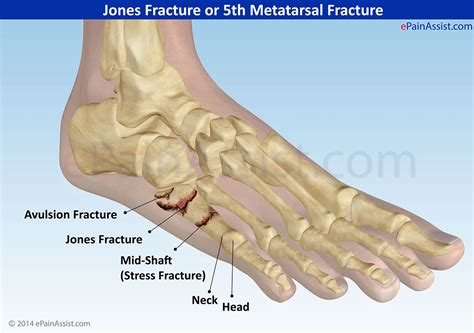 5th metatarsal pain diagnosis picture 5