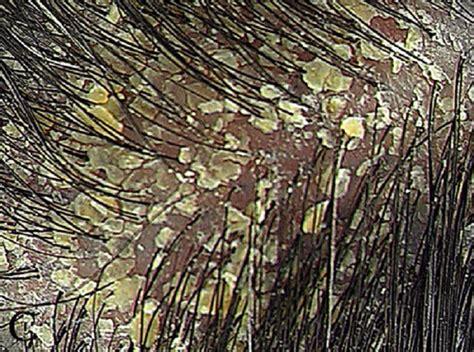gamot sa fungus picture 10