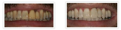 false teeth permanent killeen tx picture 14
