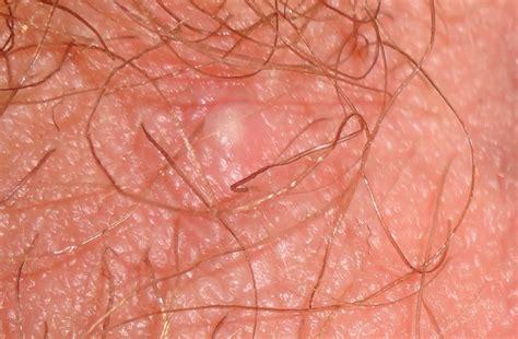 pubic acne pics picture 10
