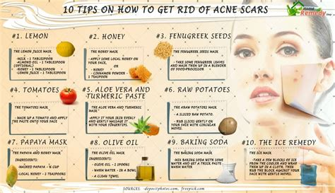 get rid of mayjor acne picture 10