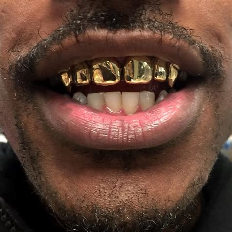 free grill teeth online picture 7