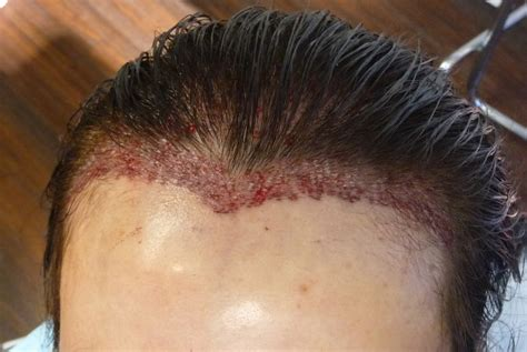 what causes hair to bald after a relaxer picture 8